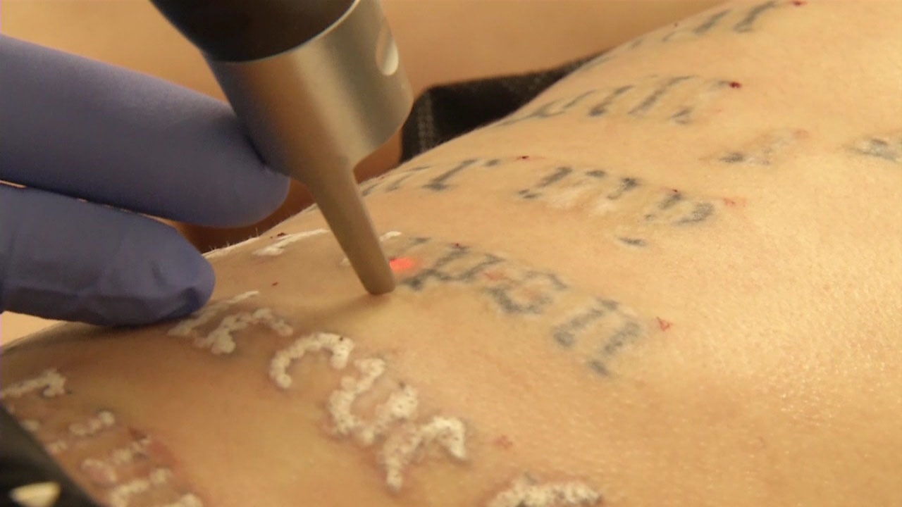 New laser technology makes tattoo removal faster