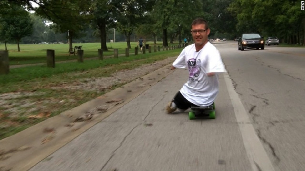 Video Man Born Without Arms Legs Participates In 5k