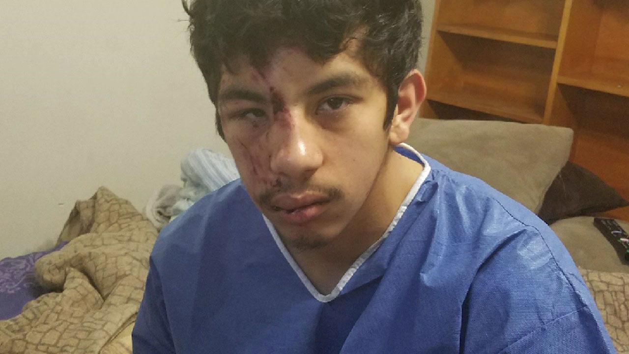 San Antonio Police Seek Driver Who Hit Man Drove Off On