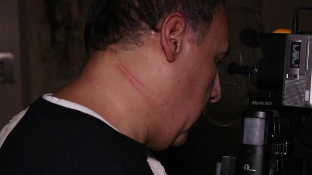 yoakum-community-hospital-scratch-2_1509430152498.jpg