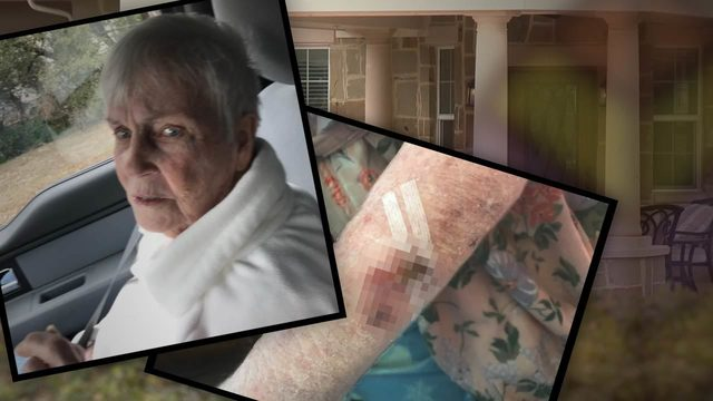 Family says 94-year-old woman with Alzheimer's was beaten at SA memory&hellip&#x3b;