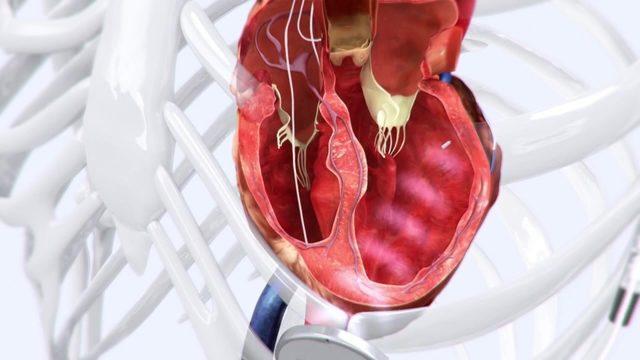 Wireless technology helps keep heart pumping