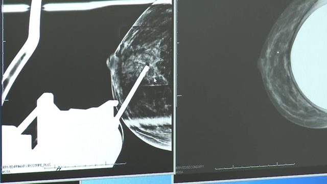 Breast cancer: What you may not know