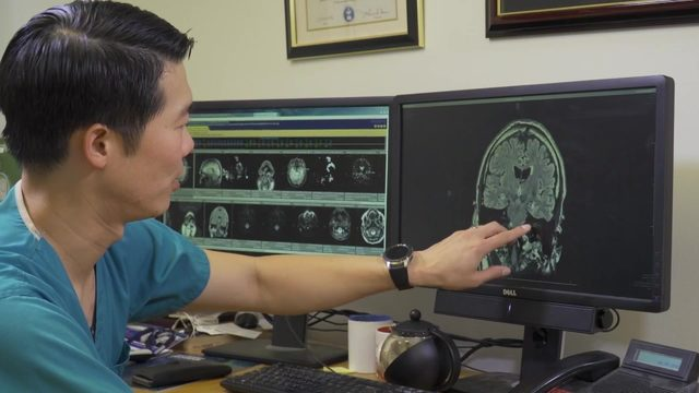 Laser ablation: Finding 'sweet spot' to stop seizures