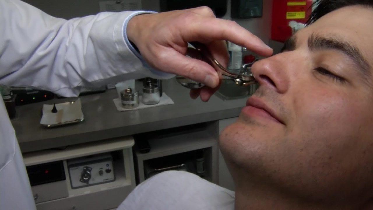 sw1500 nasal congestion - 1280×720